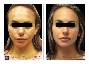 PRP Hair Treatment-Before&After pic1
