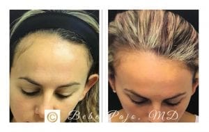 PRP Hair Treatment-Before&After-pic2