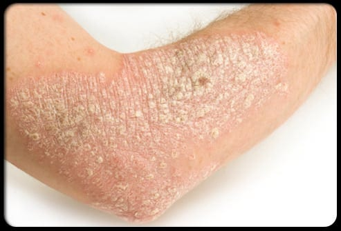 Don't give up. You can live with Psoriasis.