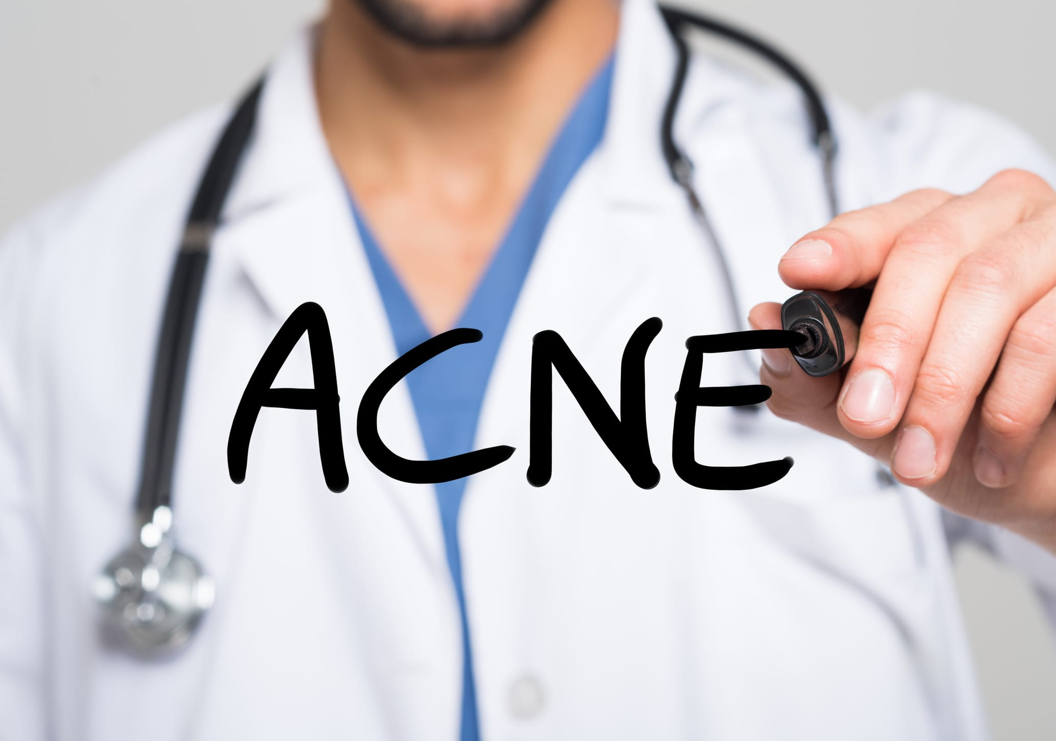 Three Major Misconceptions & Myths About Professional Acne Treatment