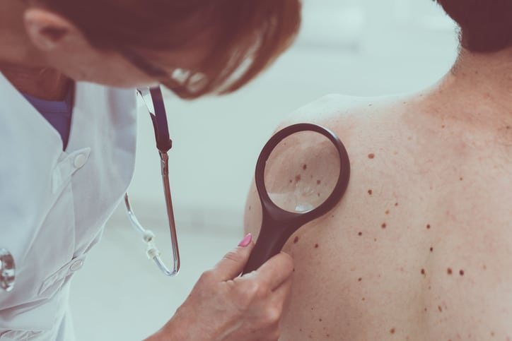 Tips for Preventing Skin Cancer
