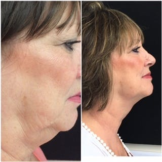Kiss Your Double Chin Goodbye With Kybella!