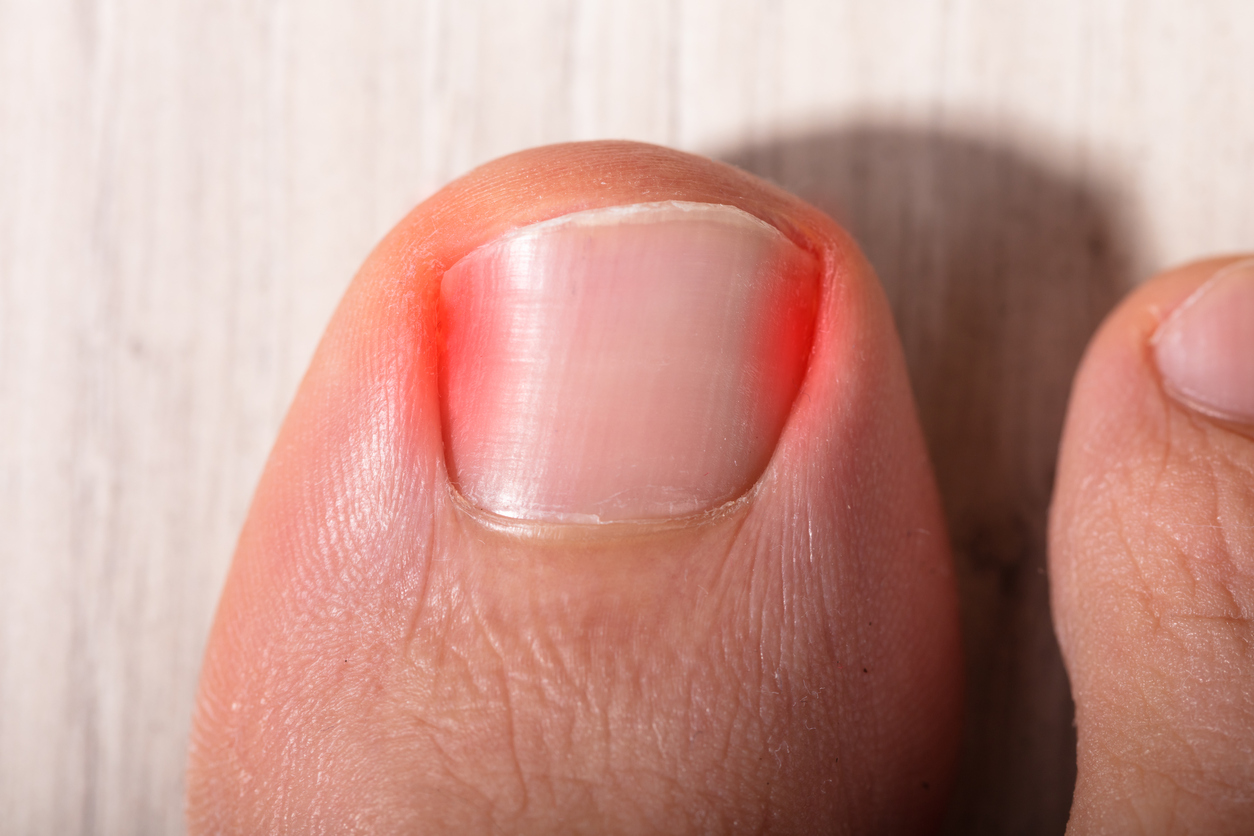 Nail Problems and What to Do About Them