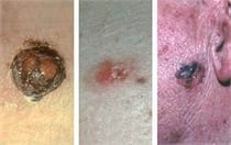 Skin Cancer Screenings for Skin Cancer Month