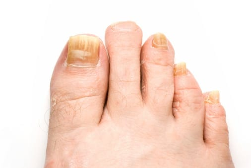 Top 5 Tips for Fighting Toenail Fungus